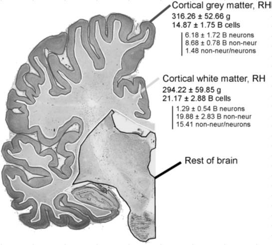 Brain-Transverse